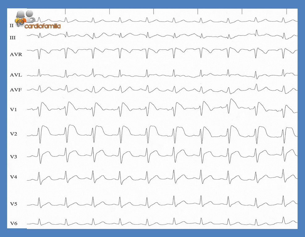 ECG ED15 Cardiofamilia
