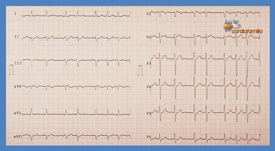ECG ED16 Cardiofamilia