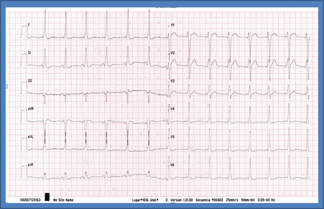 ECG marzo ED05 cardiofamilia