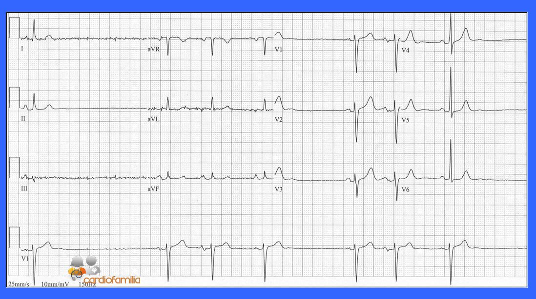 ECG.10.04.2017 Cardiofamilia