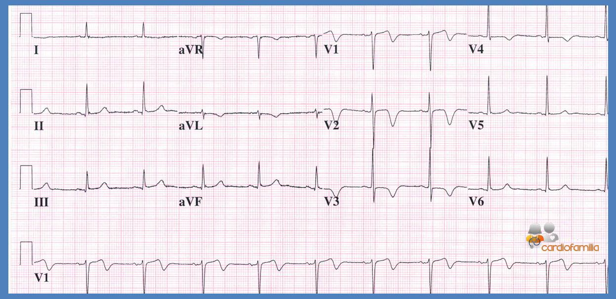ECG11 Cardiofamilia