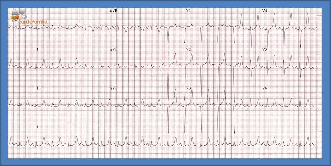ECG13 Cardiofamilia mayo