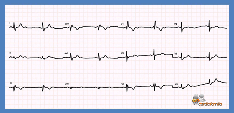 ECG14 Cardiologia mayo
