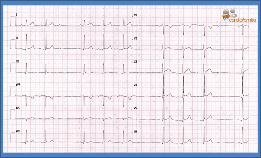 ECG cardiofamilia 23.01.2017 1
